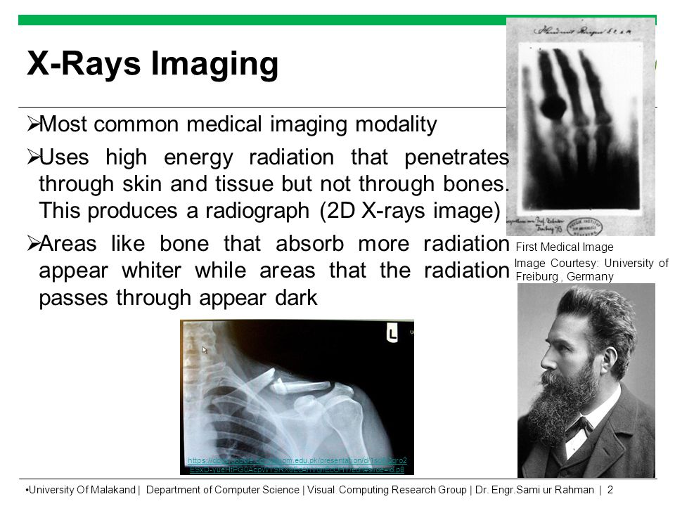 X-Rays Imaging First Medical Image Image Courtesy: University of Freiburg, Germany  Most common medical imaging modality  Uses high energy radiation that penetrates through skin and tissue but not through bones.