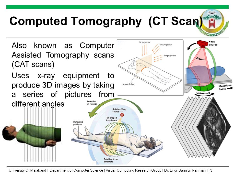 Computed Tomography (CT Scan) Also known as Computer Assisted Tomography scans (CAT scans) Uses x-ray equipment to produce 3D images by taking a series of pictures from different angles http://12000.org University Of Malakand | Department of Computer Science | Visual Computing Research Group | Dr.