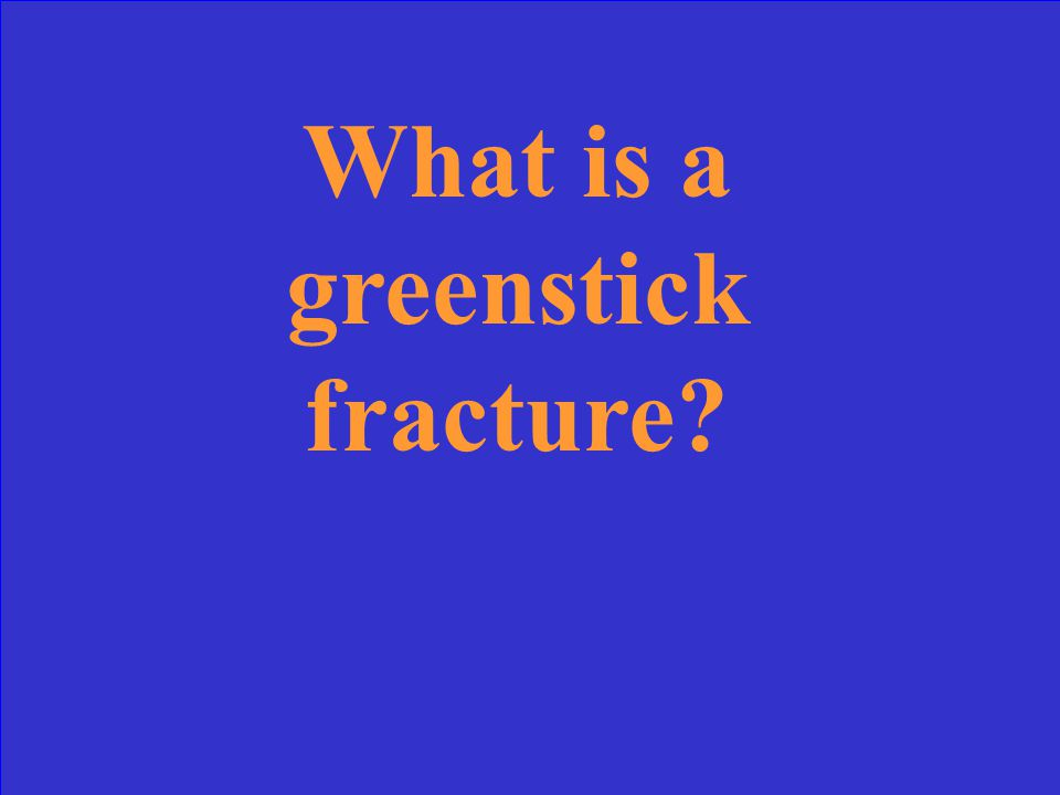 This fracture is partially through a bone and maybe confused with the nutrient foramina.