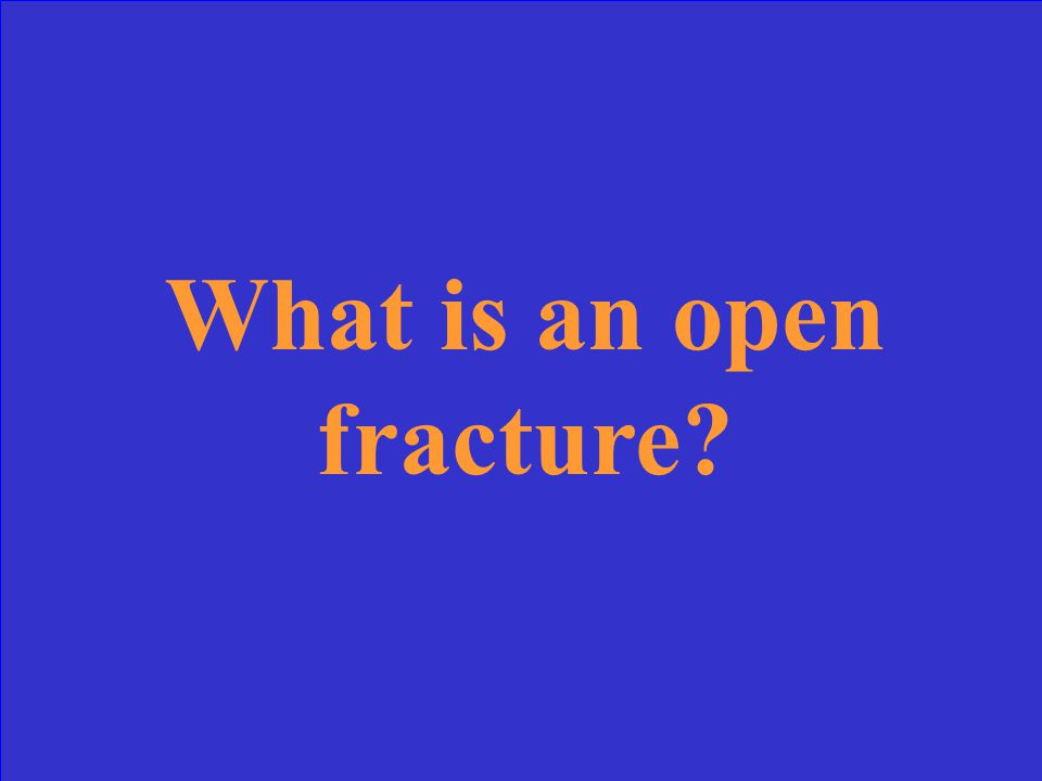 There is definite skin and bone communication with this type of fracture, but you won't necessarily see the bone.