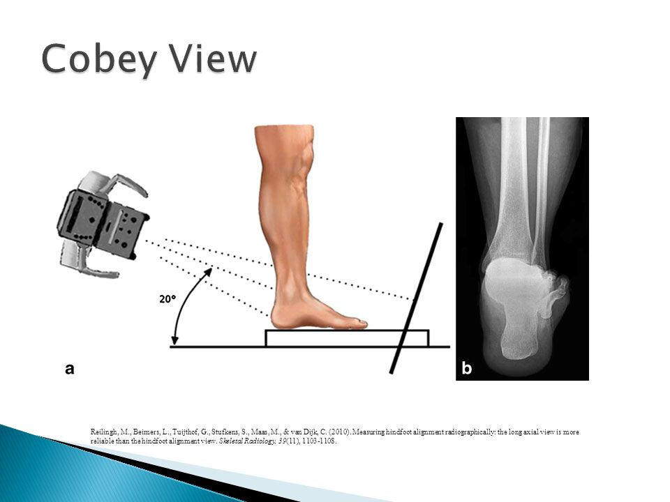 Reilingh, M., Beimers, L., Tuijthof, G., Stufkens, S., Maas, M., & van Dijk, C. (2010). Measuring hindfoot alignment radiographically: the long axial