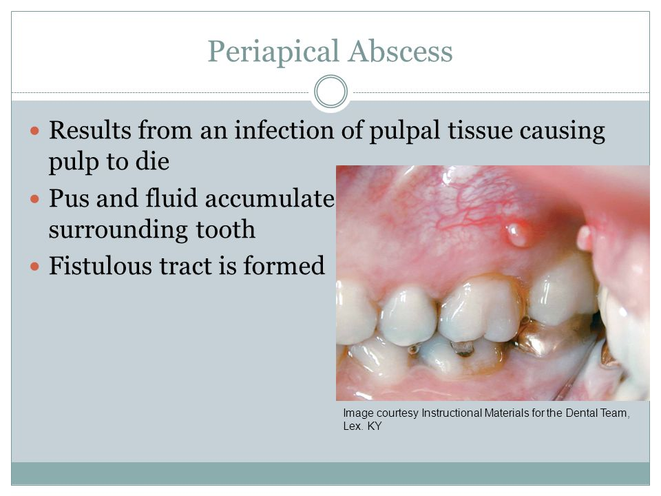 Periapical Abscess Results from an infection of pulpal tissue causing pulp to die Pus and fluid accumulate and form in the bone surrounding tooth Fist