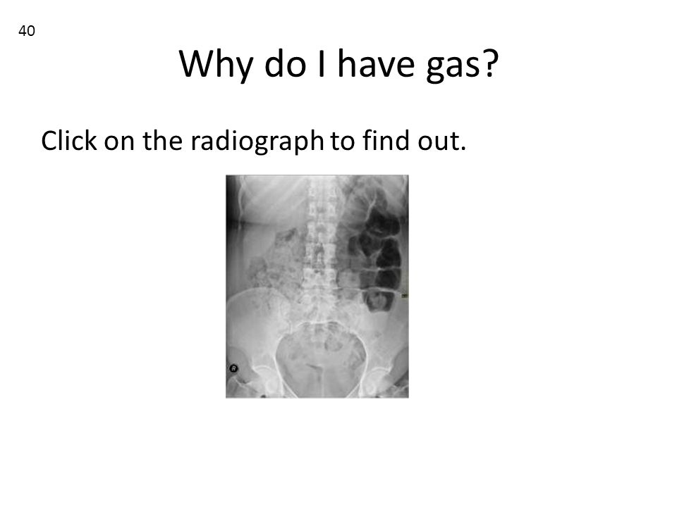 Why do I have gas? Click on the radiograph to find out. 40