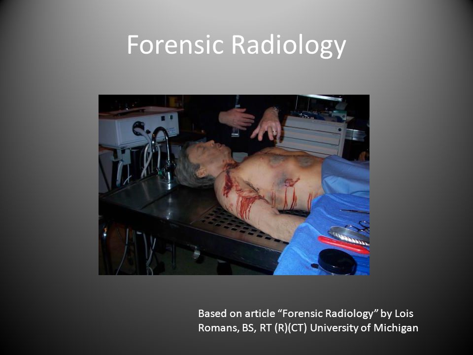 Forensic Radiology Based on article Forensic Radiology by Lois Romans, BS, RT (R)(CT) University of Michigan