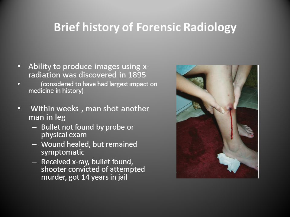 Brief history of Forensic Radiology Ability to produce images using x- radiation was discovered in 1895 (considered to have had largest impact on medicine in history) Within weeks, man shot another man in leg – Bullet not found by probe or physical exam – Wound healed, but remained symptomatic – Received x-ray, bullet found, shooter convicted of attempted murder, got 14 years in jail