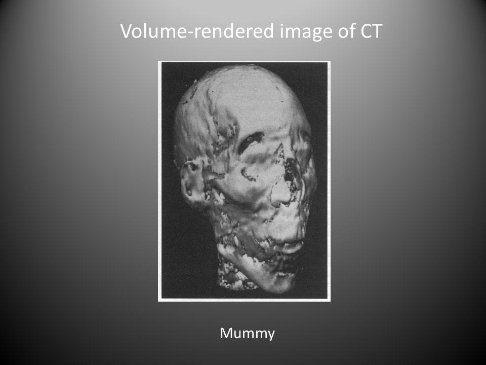 Volume-rendered image of CT Mummy