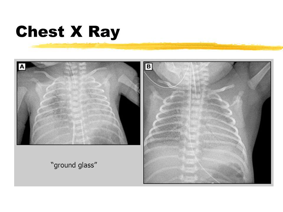 "Chest X Ray ""ground glass"""