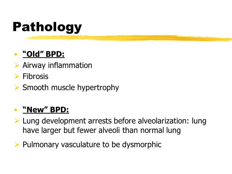 """Pathology """"Old"""" BPD:  Airway inflammation  Fibrosis  Smooth muscle hypertrophy """"New"""" BPD:  Lung development arrests before alveolarization: lung h"""