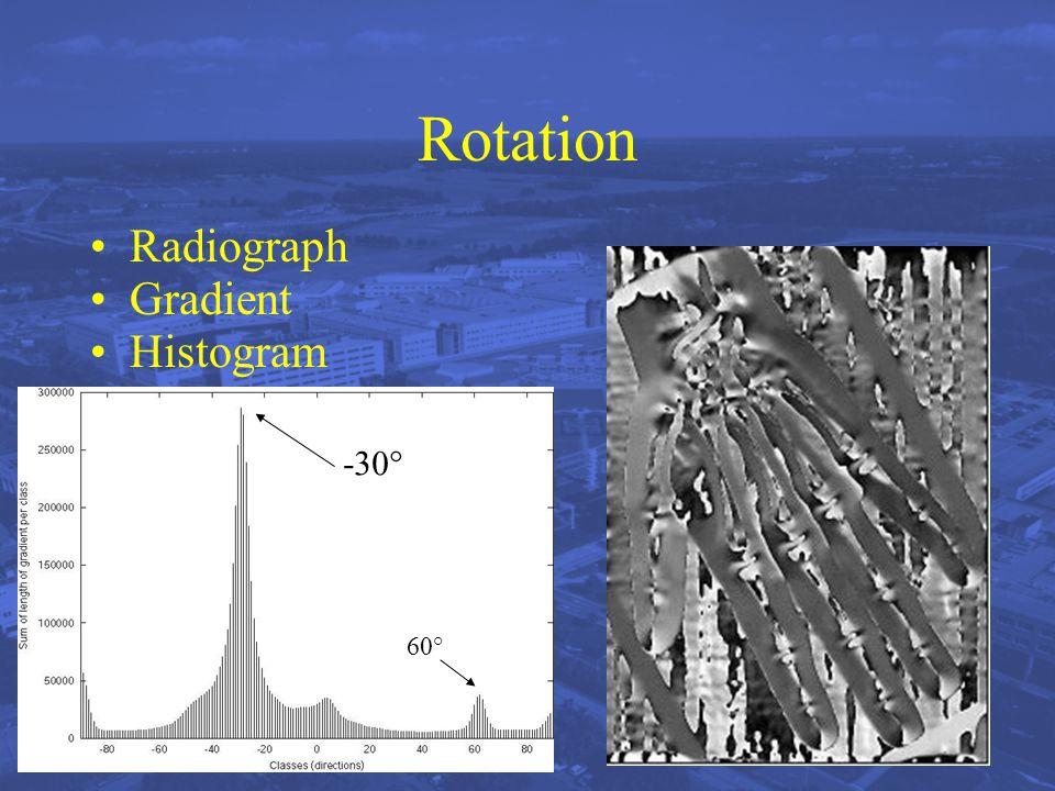 Rotation Radiograph Gradient Histogram -30° 60°