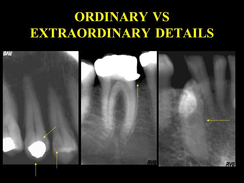 ORDINARY VS EXTRAORDINARY DETAILS