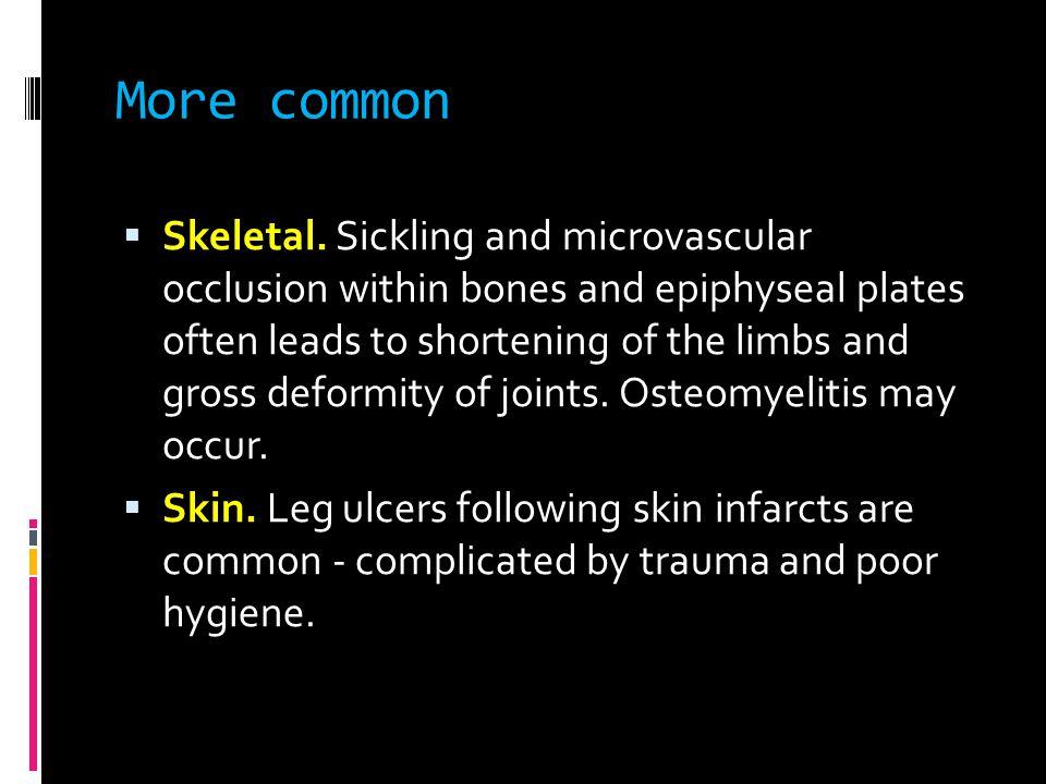 More common  Skeletal.