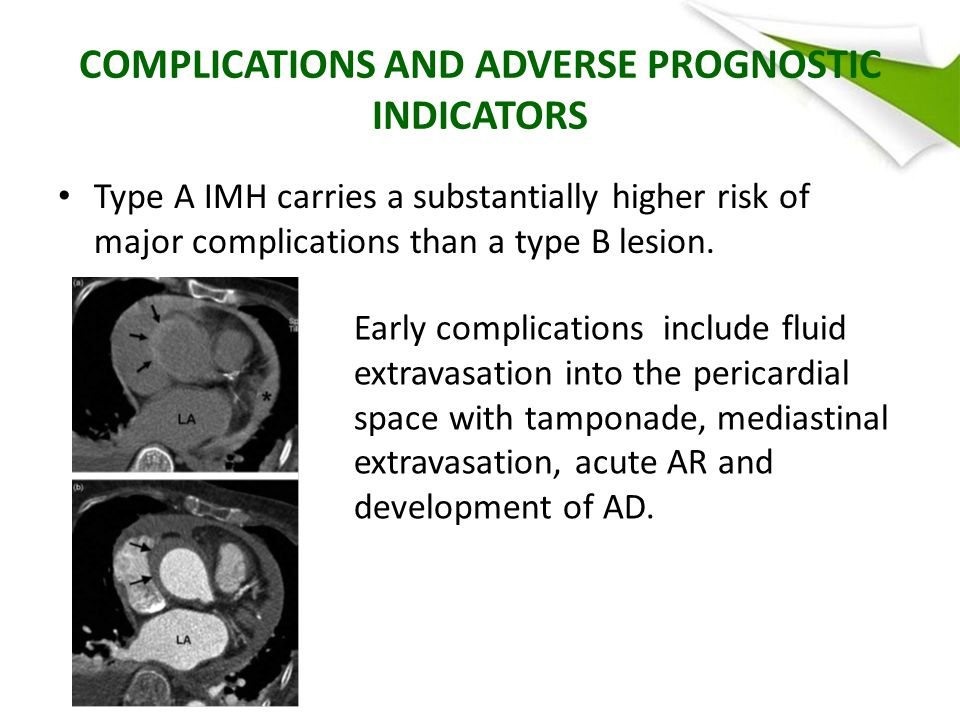 COMPLICATIONS AND ADVERSE PROGNOSTIC INDICATORS Type A IMH carries a substantially higher risk of major complications than a type B lesion.