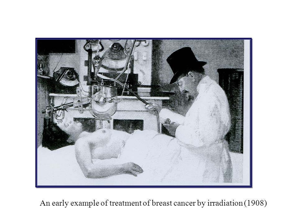 An early example of treatment of breast cancer by irradiation (1908)
