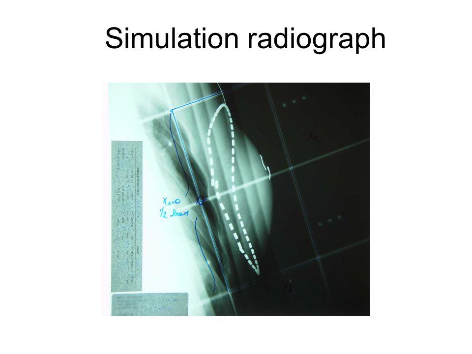 Simulation radiograph