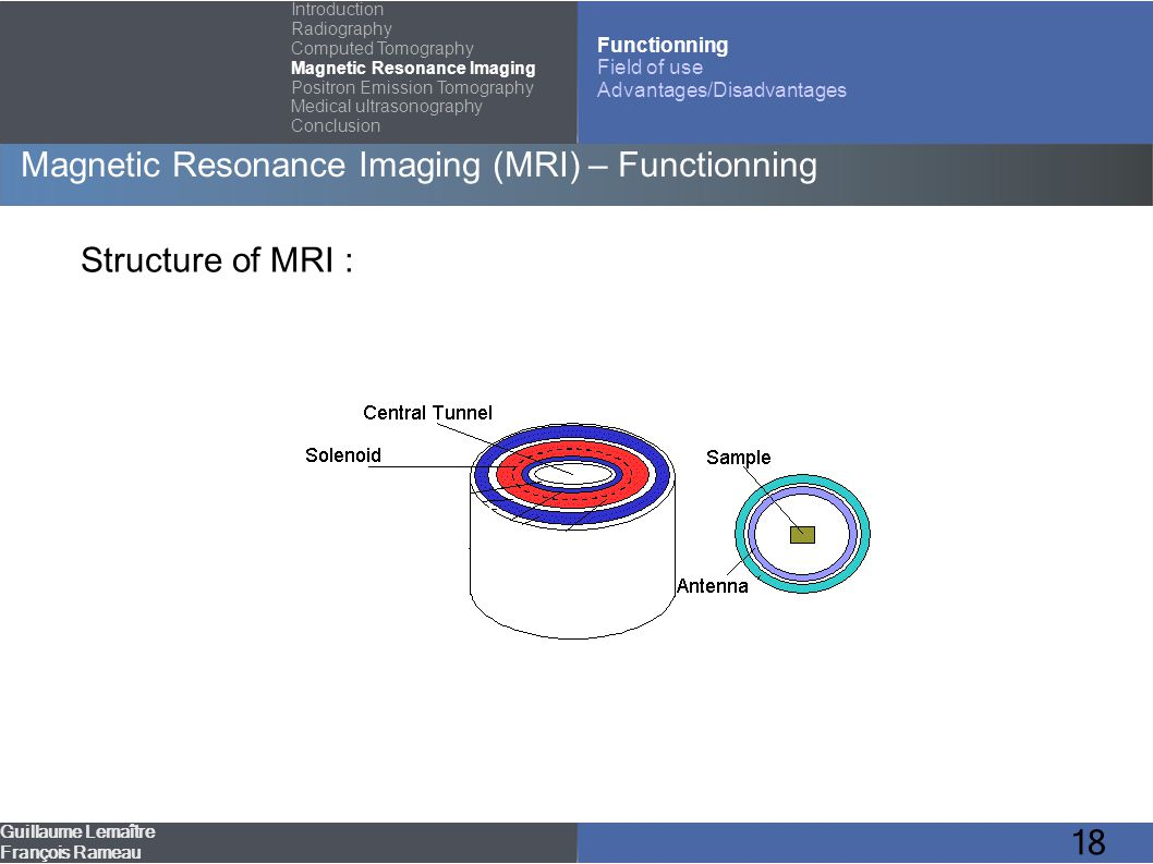 18 Magnetic Resonance Imaging (MRI) – Functionning Guillaume Lemaître François Rameau Introduction Radiography Computed Tomography Magnetic Resonance