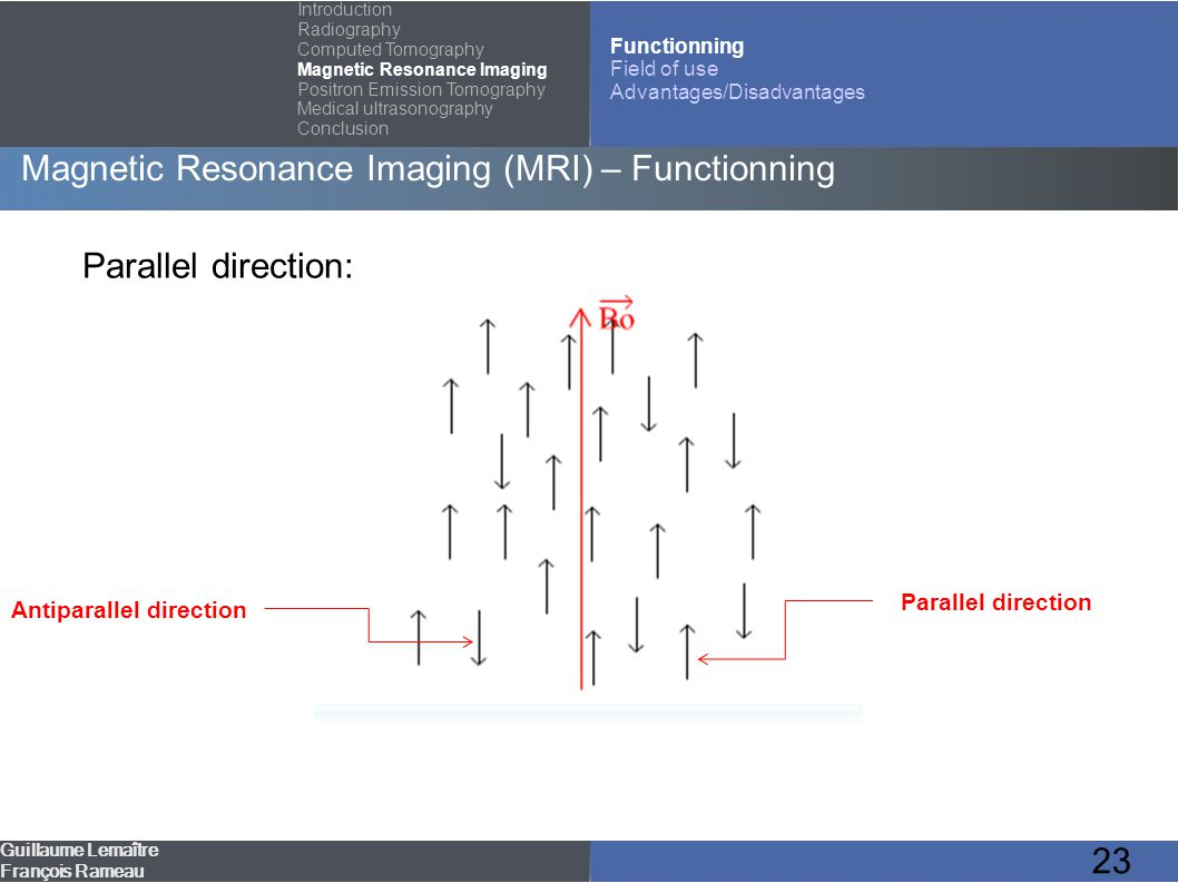 23 Magnetic Resonance Imaging (MRI) – Functionning Guillaume Lemaître François Rameau Introduction Radiography Computed Tomography Magnetic Resonance