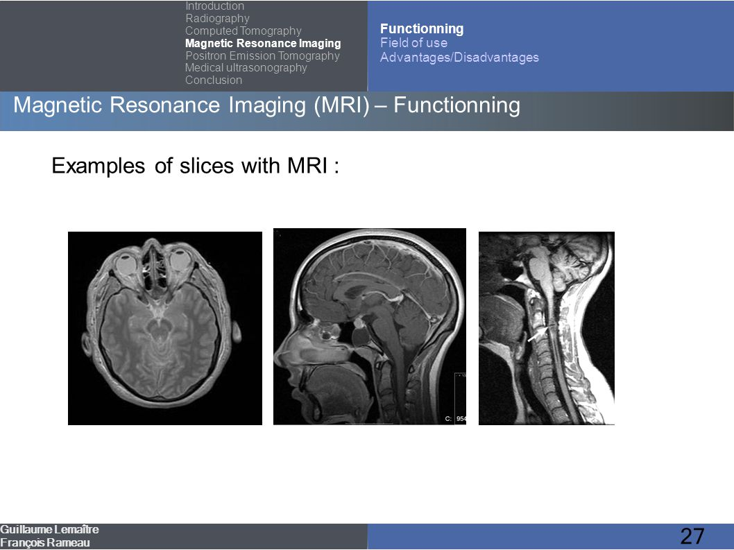 27 Magnetic Resonance Imaging (MRI) – Functionning Guillaume Lemaître François Rameau Introduction Radiography Computed Tomography Magnetic Resonance