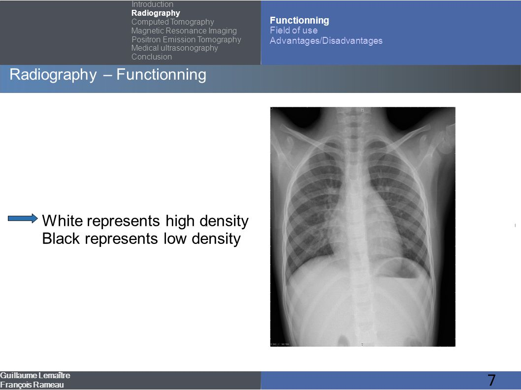 8 Radiography – Field of use Guillaume Lemaître François Rameau Introduction Radiography Computed Tomography Magnetic Resonance Imaging Positron Emission Tomography Medical ultrasonography Conclusion Functionning Field of use Advantages/Disadvantages Bones imaging Dental domain