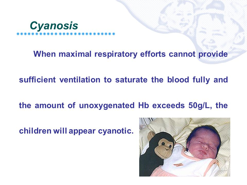 Cyanosis When maximal respiratory efforts cannot provide sufficient ventilation to saturate the blood fully and the amount of unoxygenated Hb exceeds