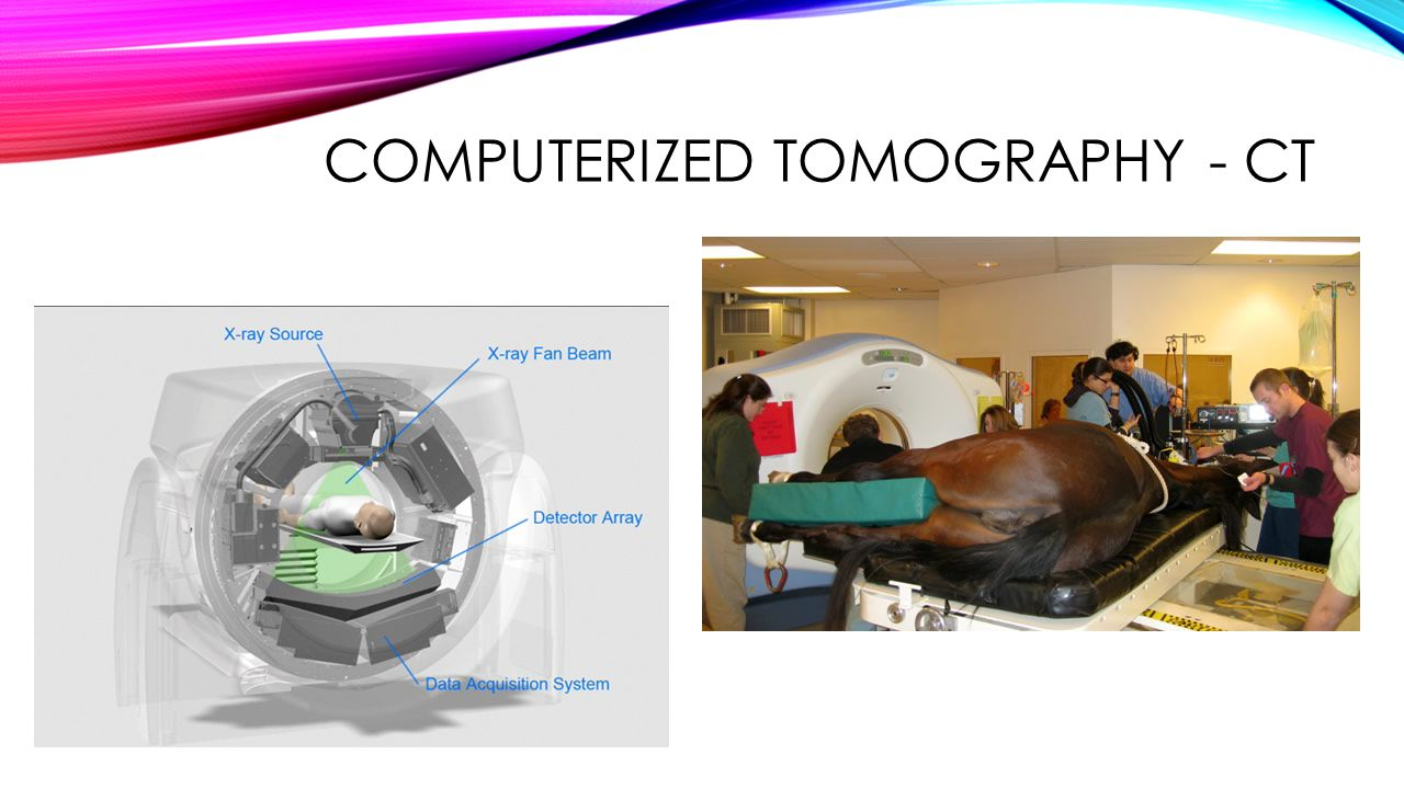 COMPUTERIZED TOMOGRAPHY - CT