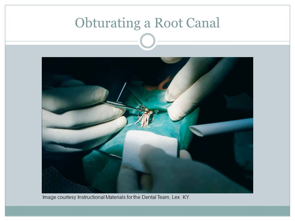 Obturating a Root Canal Image courtesy Instructional Materials for the Dental Team, Lex. KY