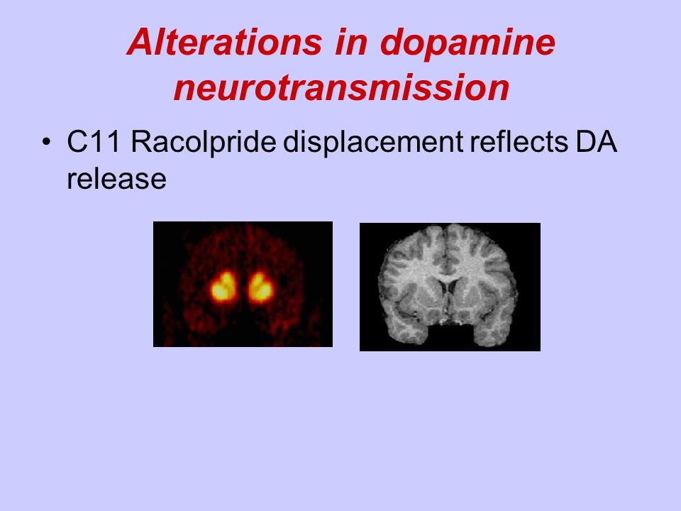 Impairment of Top Down Control in Schizophrenia: Functional Connectivity Yoon, Minzenberg, Ursu, and Carter 2008 American J.