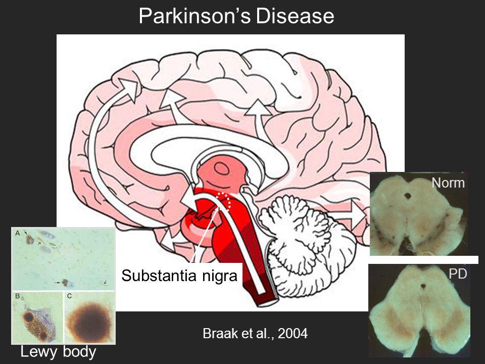 Braak et al., 2004 Lewy body Substantia nigra Norm PD Parkinson's Disease