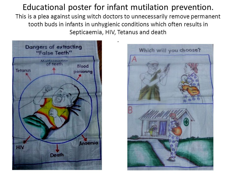Educational poster for infant mutilation prevention.