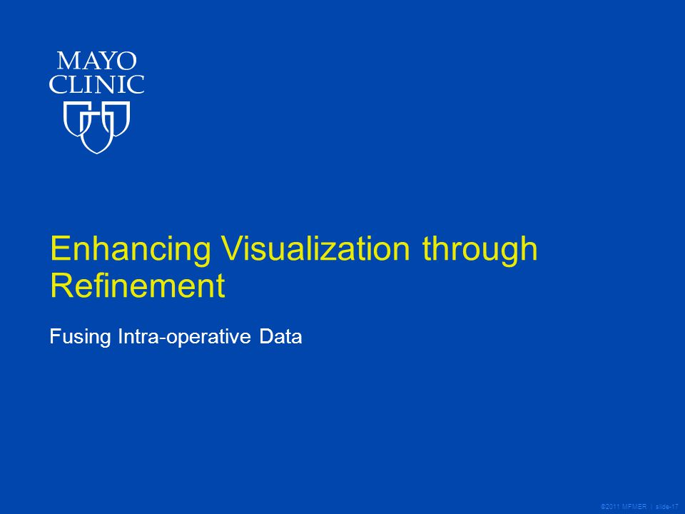 ©2011 MFMER | slide-17 Enhancing Visualization through Refinement Fusing Intra-operative Data