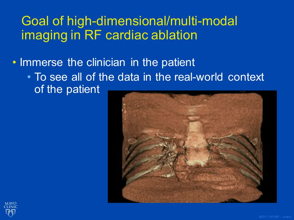 ©2011 MFMER | slide-6 Goal of high-dimensional/multi-modal imaging in RF cardiac ablation Immerse the clinician in the patient To see all of the data in the real-world context of the patient