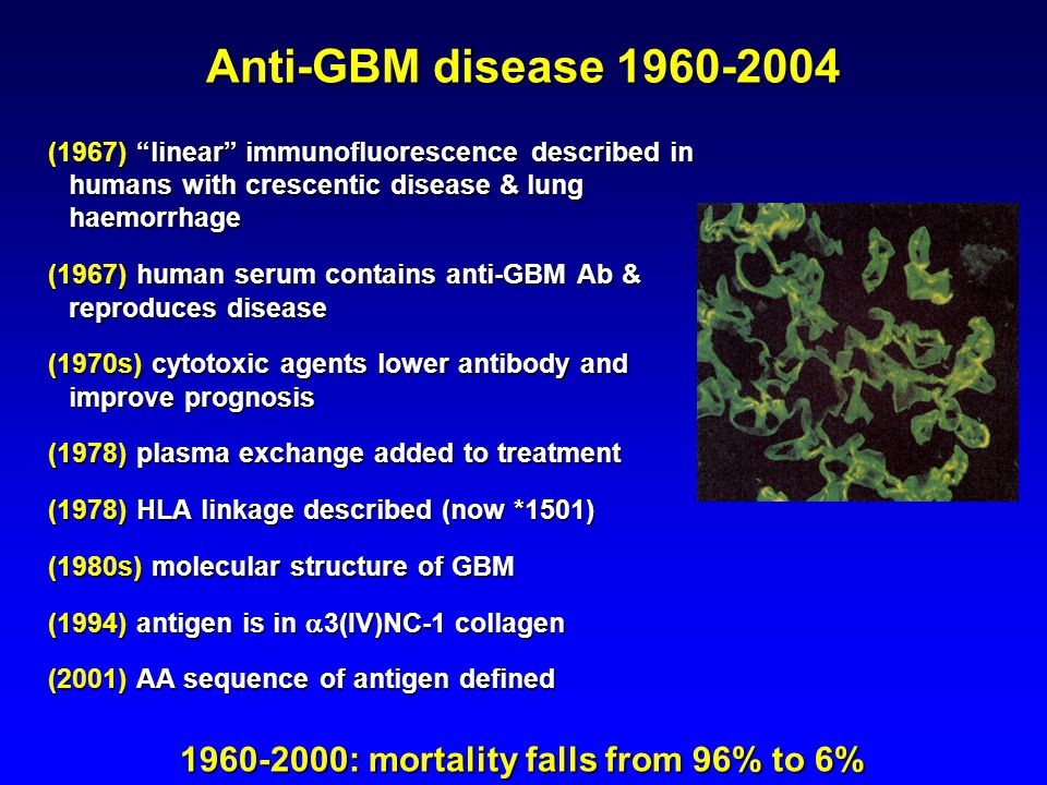 Anti-GBM disease 1960-2004 (1967) linear immunofluorescence described in humans with crescentic disease & lung haemorrhage (1967) human serum contains anti-GBM Ab & reproduces disease (1970s) cytotoxic agents lower antibody and improve prognosis (1978) plasma exchange added to treatment (1978) HLA linkage described (now *1501) (1980s) molecular structure of GBM (1994) antigen is in  3(IV)NC-1 collagen (2001) AA sequence of antigen defined 1960-2000: mortality falls from 96% to 6%