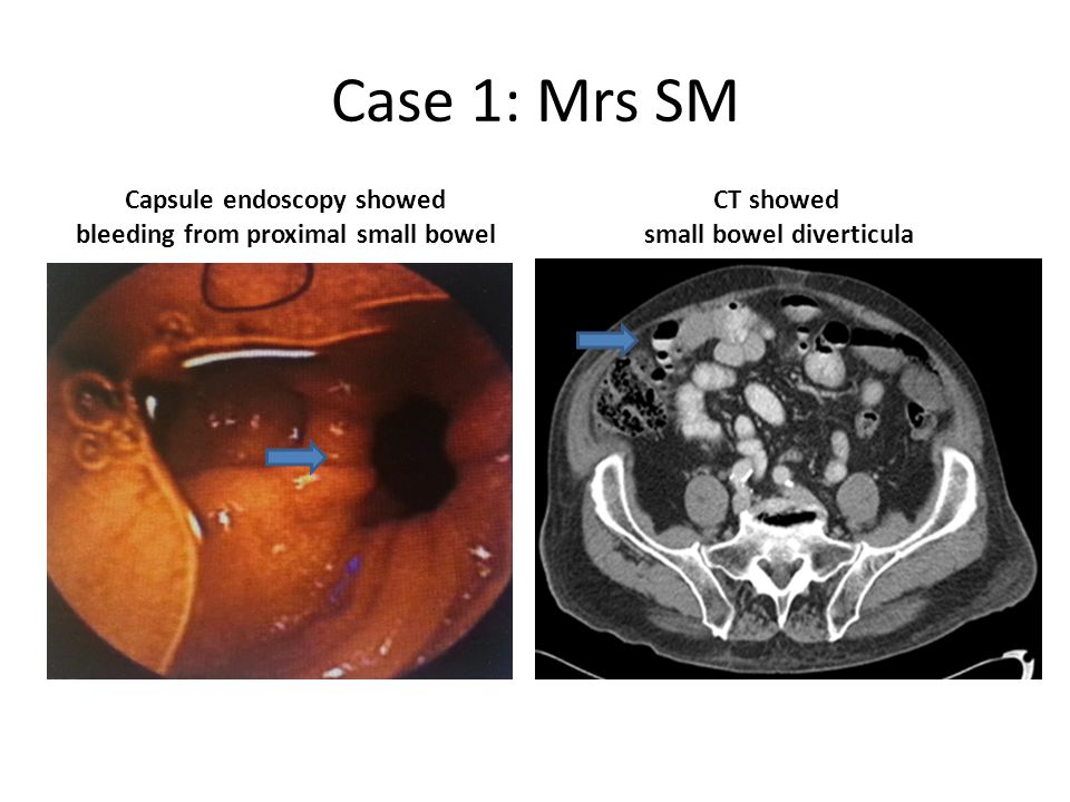 Case 1: Mrs SM Capsule endoscopy showed bleeding from proximal small bowel CT showed small bowel diverticula