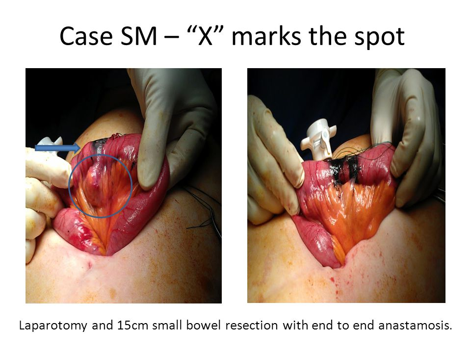 Case SM – X marks the spot Laparotomy and 15cm small bowel resection with end to end anastamosis.