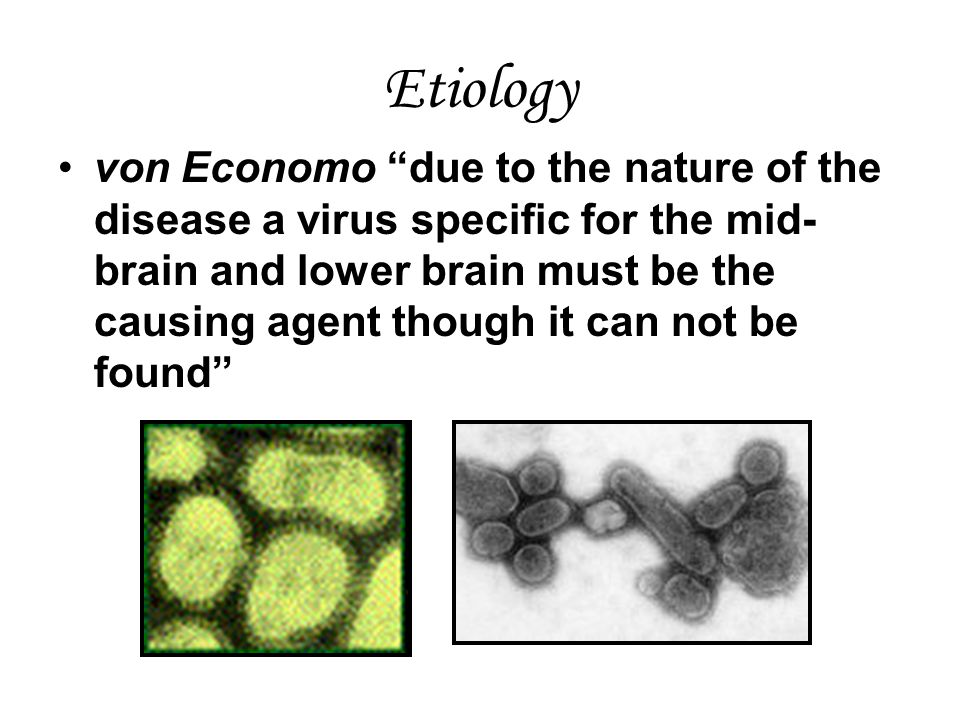 Etiology von Economo due to the nature of the disease a virus specific for the mid- brain and lower brain must be the causing agent though it can not be found