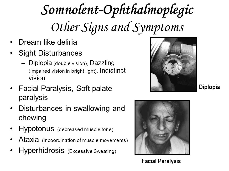 Somnolent-Ophthalmoplegic Other Signs and Symptoms Dream like deliria Sight Disturbances –Diplopia (double vision), Dazzling (Impaired vision in bright light), Indistinct vision Facial Paralysis, Soft palate paralysis Disturbances in swallowing and chewing Hypotonus (decreased muscle tone) Ataxia (incoordination of muscle movements) Hyperhidrosis (Excessive Sweating) Diplopia Facial Paralysis