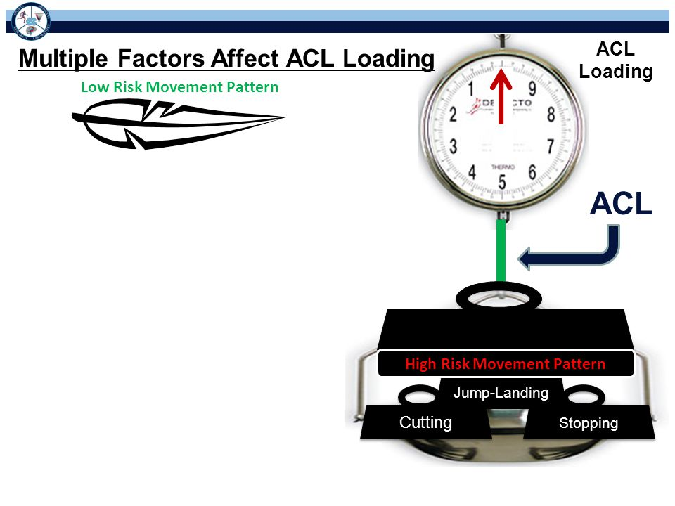 Low Risk Movement Pattern ACL Loading Multiple Factors Affect ACL Loading Stopping Cutting Jump-Landing High Risk Movement Pattern