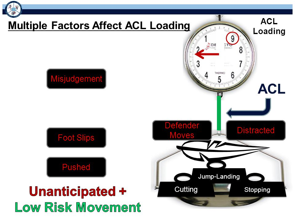 ACL Loading Multiple Factors Affect ACL Loading Stopping Cutting Jump-Landing Misjudgement Distracted Defender Moves Foot Slips Pushed