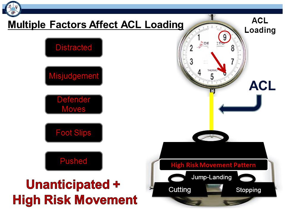 ACL Loading Multiple Factors Affect ACL Loading Stopping Cutting Jump-Landing High Risk Movement Pattern Misjudgement Distracted Defender Moves Foot Slips Pushed