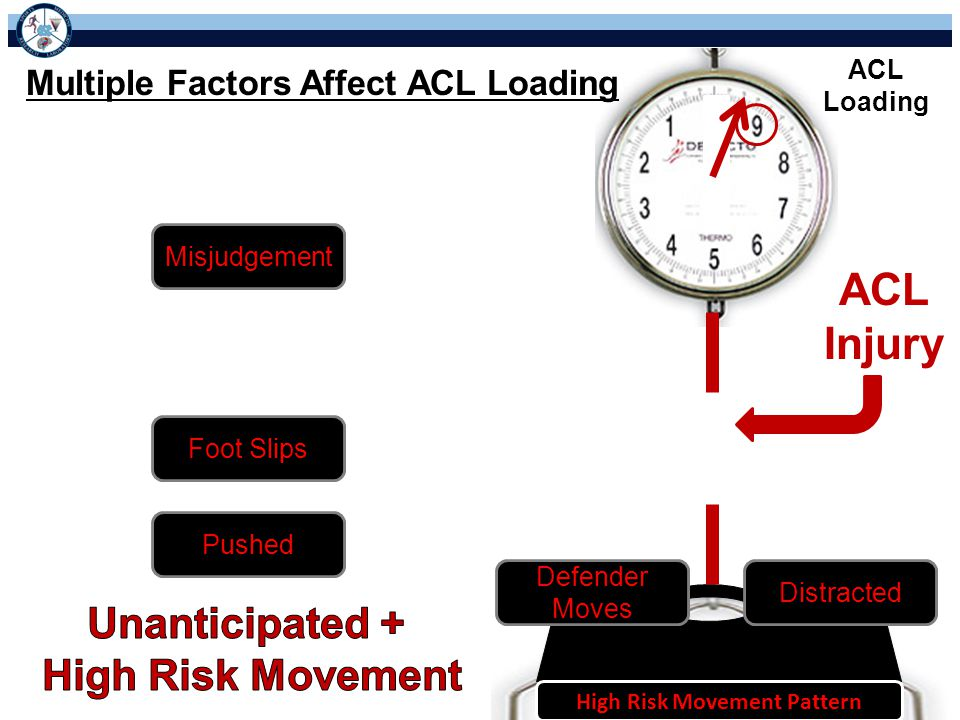 ACL Injury ACL Loading Multiple Factors Affect ACL Loading Stopping Cutting Jump-Landing High Risk Movement Pattern Misjudgement Distracted Defender Moves Foot Slips Pushed