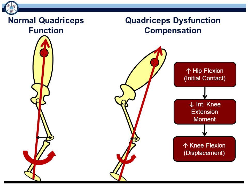 Normal Quadriceps Function Quadriceps Dysfunction Compensation ↑ Knee Flexion (Displacement) ↓ Int. Knee Extension Moment ↑ Hip Flexion (Initial Conta