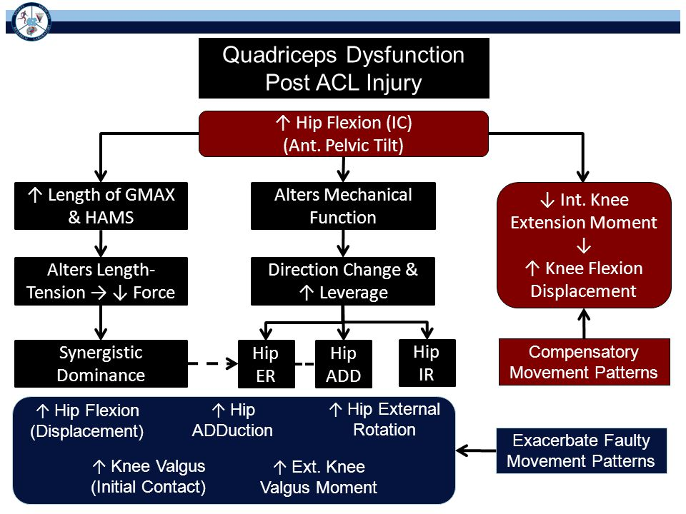 Quadriceps Dysfunction Post ACL Injury ↑ Hip Flexion (IC) (Ant.