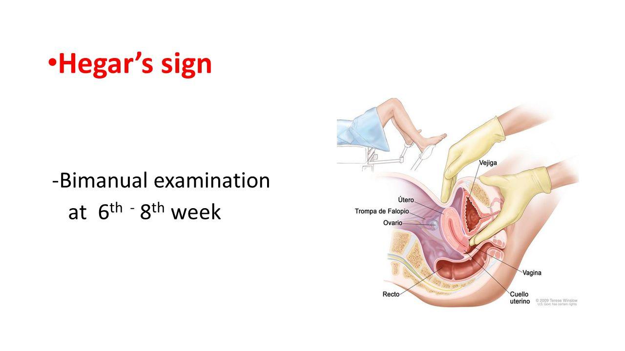 Hegar's sign -Bimanual examination at 6 th - 8 th week