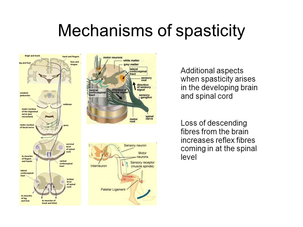 Spasticity and dystonia management
