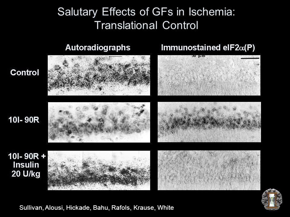 Salutary Effects of GFs in Ischemia: Translational Control Sullivan, Alousi, Hickade, Bahu, Rafols, Krause, White
