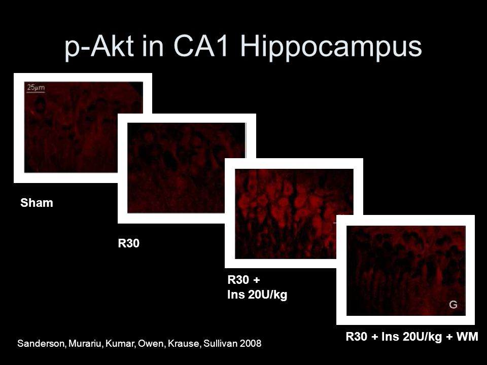 p-Akt in CA1 Hippocampus ShamR30 R30 + Ins 20U/kg R30 + Ins 20U/kg + WM Sanderson, Murariu, Kumar, Owen, Krause, Sullivan 2008