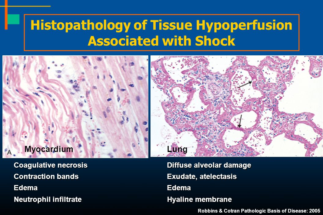Histopathology of Tissue Hypoperfusion Associated with Shock Coagulative necrosis Contraction bands Edema Neutrophil infiltrate Myocardium Diffuse alv
