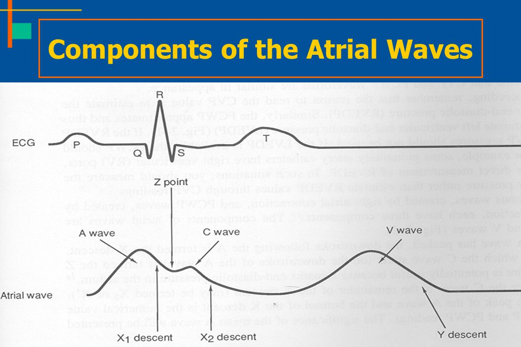 Components of the Atrial Waves