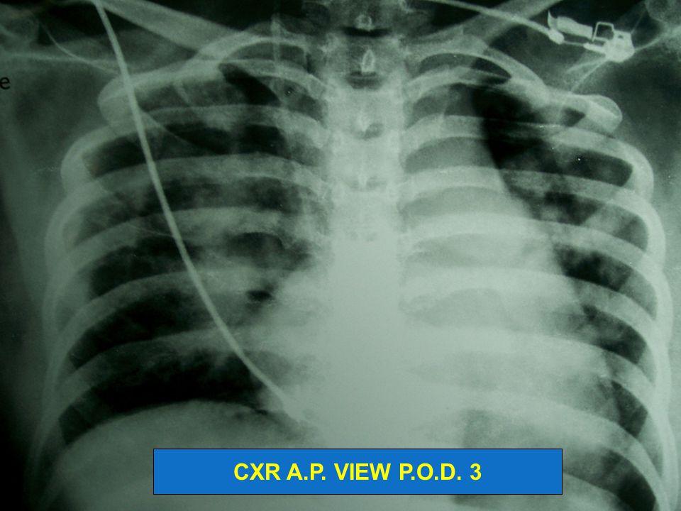 CXR A.P. VIEW P.O.D. 3