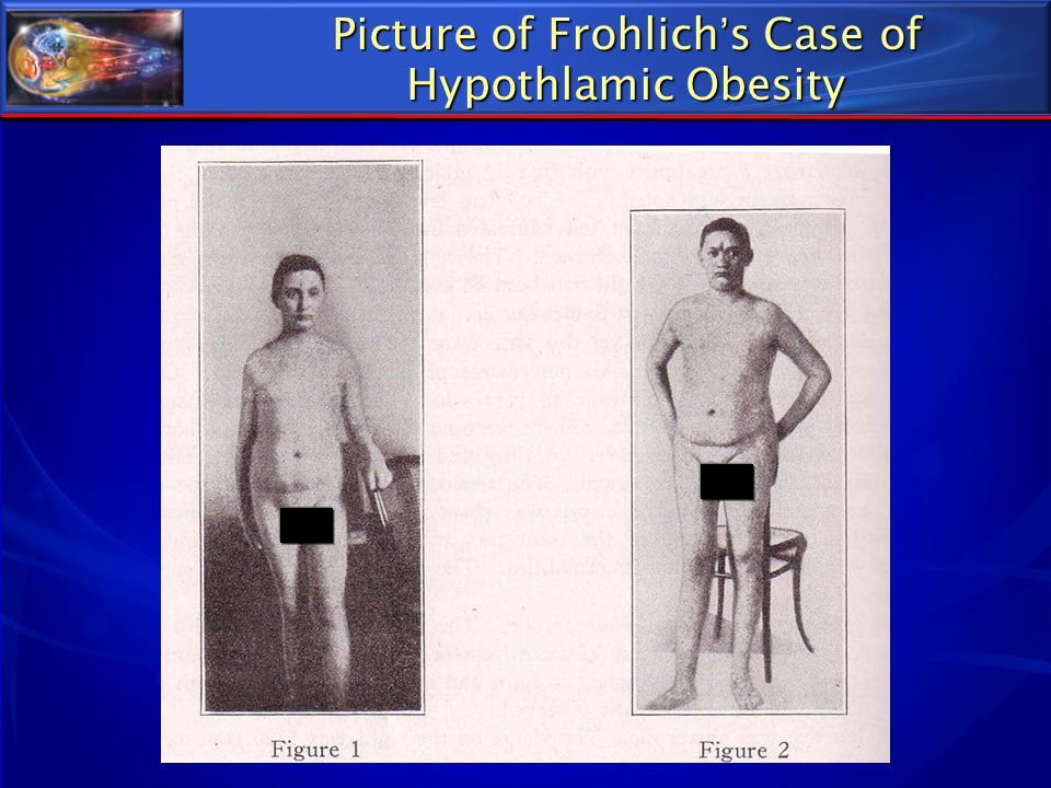 Picture of Frohlich's Case of Hypothlamic Obesity
