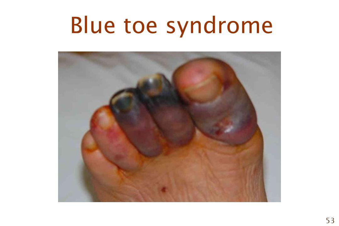 53 Blue toe syndrome